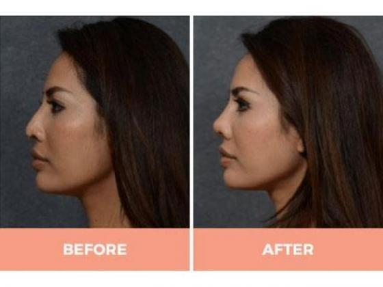 Most Effective Asian Nose Job in Sydney – Call Dr Hodgkinson Today!