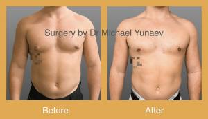Professional Male Breast Reduction Surgery in Sydney - Contact Us Now!