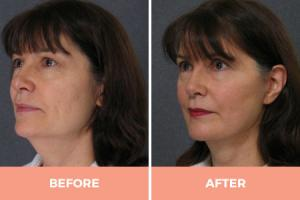 High-Quality Lower Face Lift Surgery in Sydney - Contact Dr Hodgkinson Today!